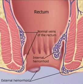 rectal hemorrhoids